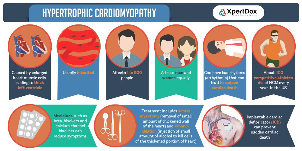 cardiomyopathy hypertrophic paper term Background: in patients who underwent transaortic myectomy for hypertrophic obstructive cardiomyopathy (hocm), we evaluated the role of concomitant procedures for short and long term outcome methods : from 1985 to 2000, in 125 patients a myectomy according to.