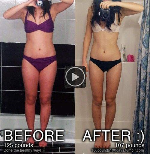 Sally extreme weight loss update photo 10