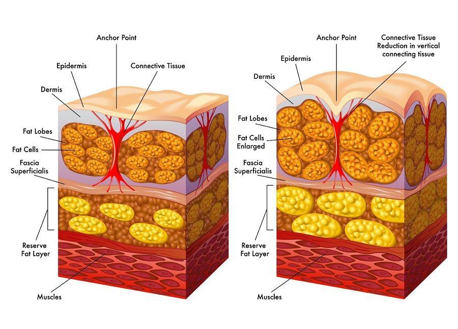 Come combattere la cellulite? - Blog Salugea