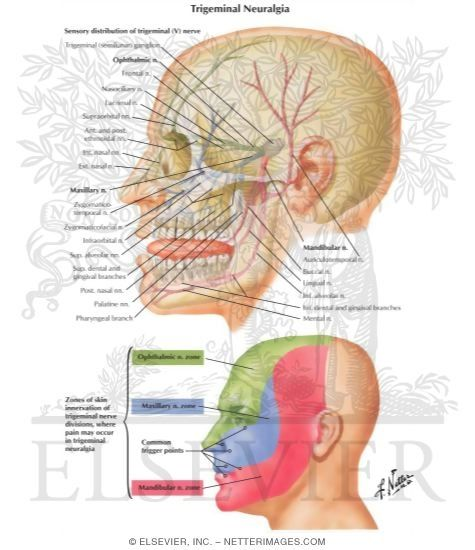 Trigeminal Neuralgia - Netter Medical Illustrations these are the best images i have found! Multiple Sclerosis
