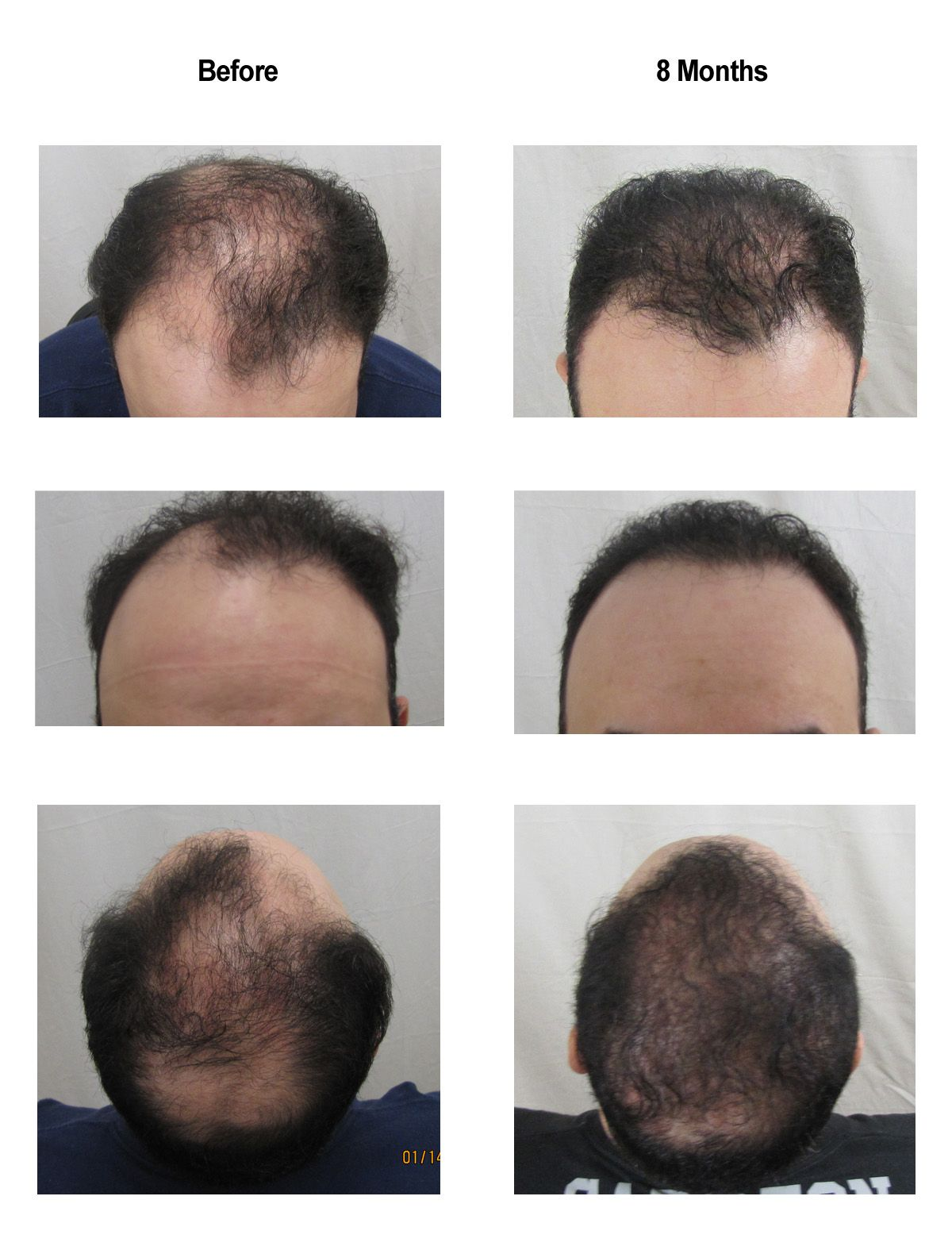 Before And After Of Recent Hair Transplantat 8 Months