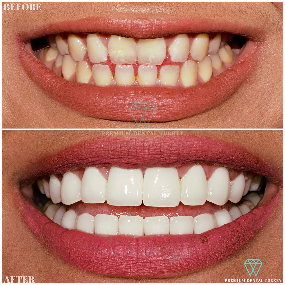 Beautiful, stunning end result with E Max Dental Crowns by Premium