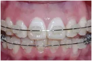 Different Types Of Dental Crowns And Why The 999 Price Tag Porcelain Ceramic Veneers Porcelain Fused To Metal Why A Dental Crowns Dental Implant Dentist