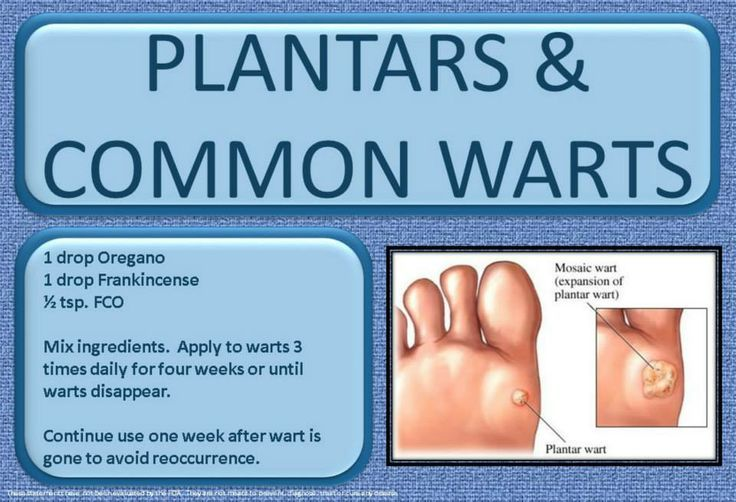Did You Know That Essential Oils Can Help With Removing Warts Come In To See How They Can Help You Warts What Are Skin Tags Apple Cider Vinegar Face Mask