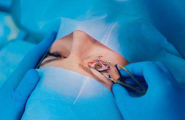 How to treat myopia with corrective lens eye surgery