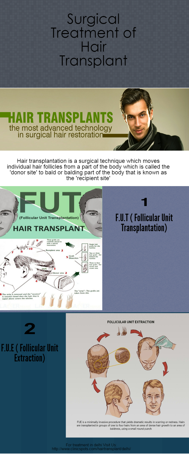 Find The Best Surgical Hair Transplantation Cost In Delhi And Get