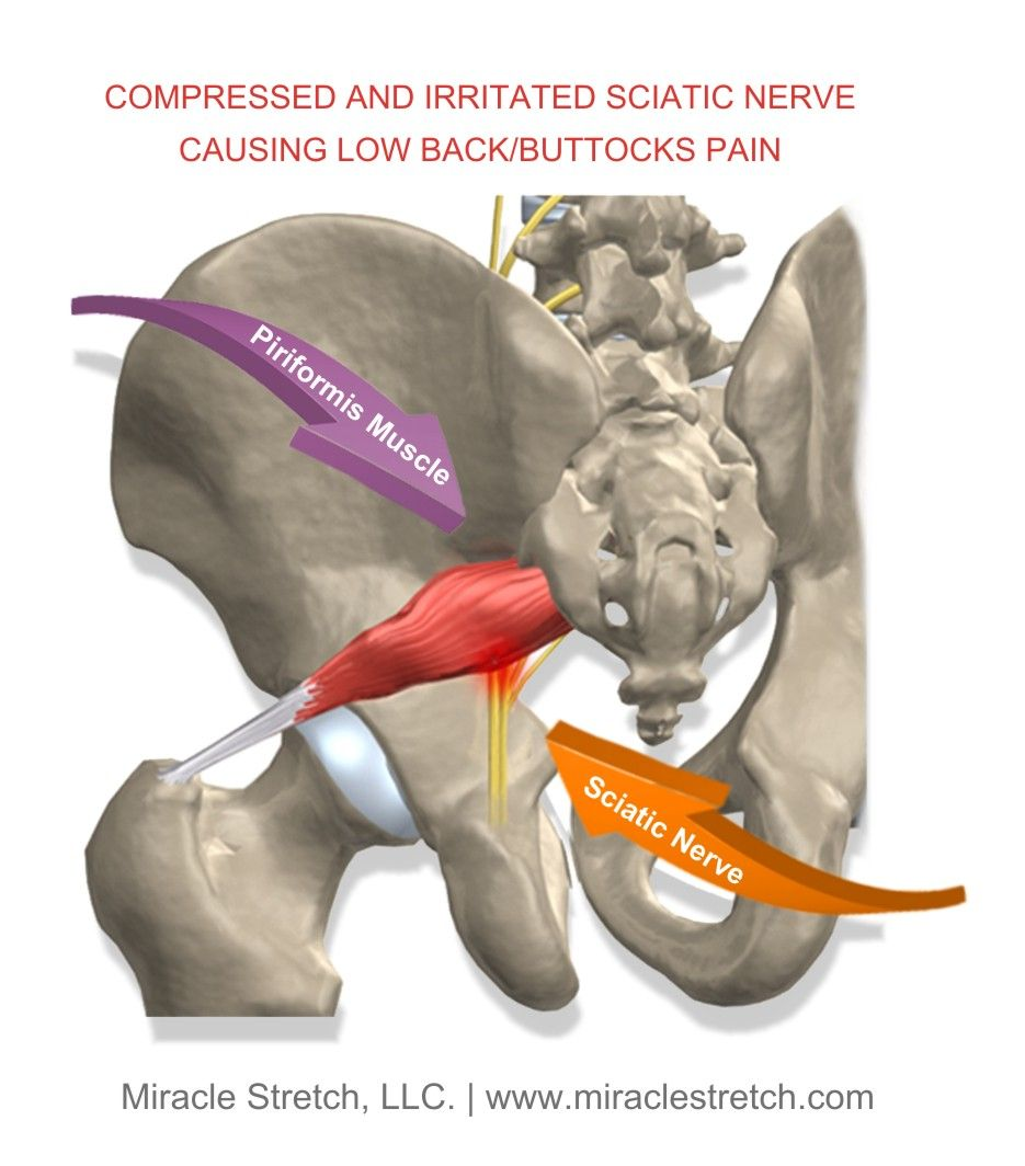 When the piriformis muscle becomes tight, it compresses the sciatic ...