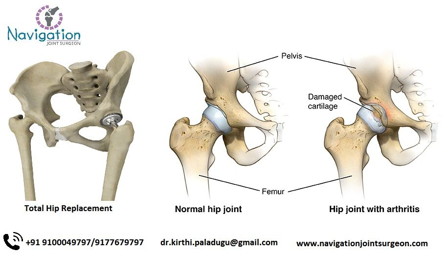 The Hip Joint Is The Largest Ball And Socket Synovial Joint In Our