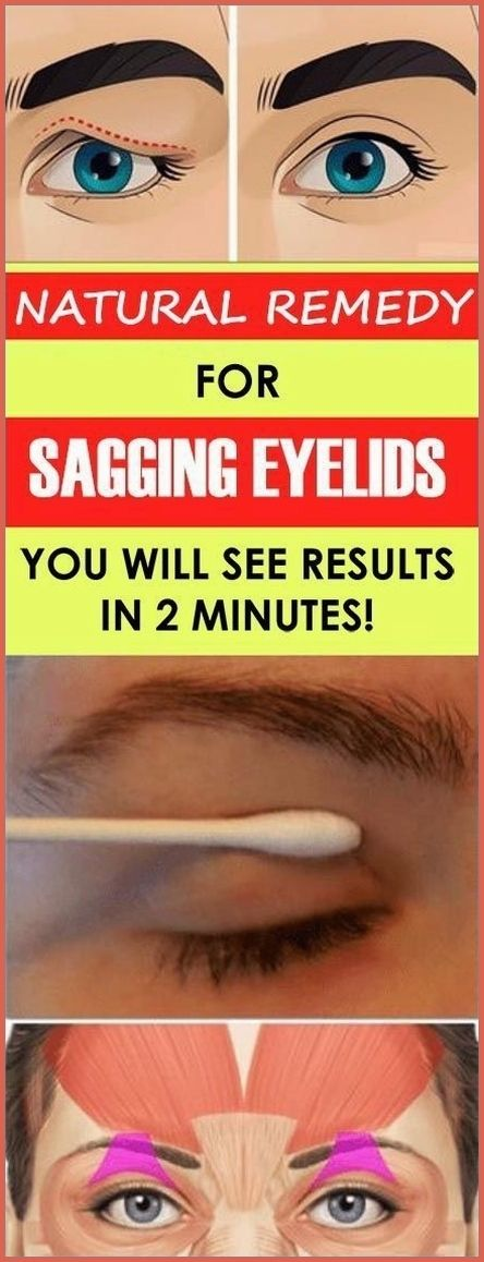 Natural Remedy For Sagging Eyelids You Will See Re