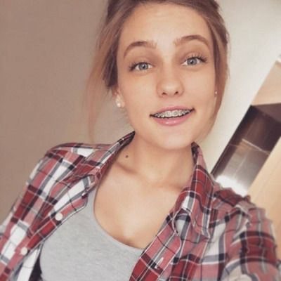 pictures-of-girls-in-braces
