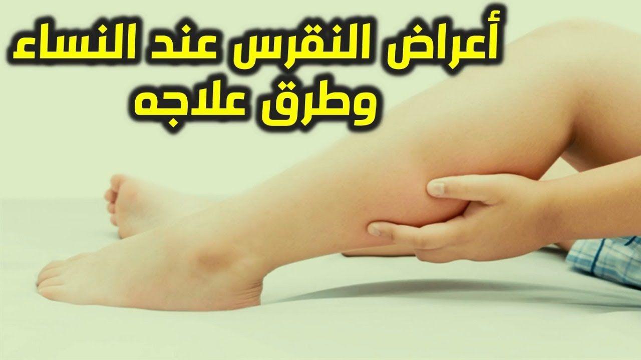 اعراض النقرس في كعب القدم واليد والركبة اعراض مرض النقرس اسبابه وعلاجه