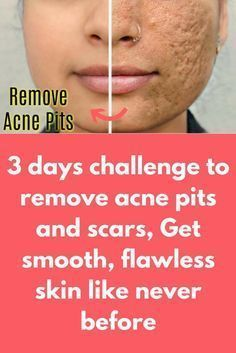 157990788d58 3 days challenge to remove acne pits and scars, Get smooth, flawless skin  like never before Depending on how deep your scars are, you may be able to  smooth ...