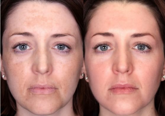 Image result for Melasma Cure - Treat Melasma, Remove Dark Or Age Spots, & Lighten Your Skin Safely in 2 Weeks     Melasma is also known as Chloasma. This is a term that signals rough dark brown discolored skin on the face and other parts of the body. They're caused because of sudden hormonal fluctuations. For instance, girls have them during pregnancy.   Girls also have it if they take an excess of oral contraceptives. These contraceptives include an excess of estrogen. This is also a modified type of hyperpigmentation. It's typically found in those regions of the body that are sun-exposed for a long time. Here Are a Few Tips that would assist you to understand this problem better and also help you in Melasma cure:   In case it has happened due to the oral contraceptives or any hormone replacement therapy (that's HRT), it fades out by itself in a few months. All these months, instead of taking any harsh drugs or lengthy treatments you just need to take good care of your skin. It's possible to use some skin care creams like Meladerm. It's also known to appear results within 14 days of frequent use. You must always use suntan lotions properly while going out in the afternoons.   These ingredients assist in melasma heal. Sometimes the doctors recommend topical steroid creams or chemical peels. A chemical peel is a procedure only the skilled & experienced dermatologists can run. In this case, you must have an appropriate treatment from a dermatologist. Laser treatments are very known for melasma cure. But these are extremely expensive and need a lot of care. In the event, you take these up, be sure you would follow their instructions very rigidly. Also, they have their pros & cons.   You have to know these in detail before picking them. For that, you need to seek advice from your physician. In the event you need a permanent and straightforward melasma cure, consult with a homeopathic doctor. The homeopathic medications can help in eliminating the matter forever. This means that if a woman has taken up this treatment while delivering