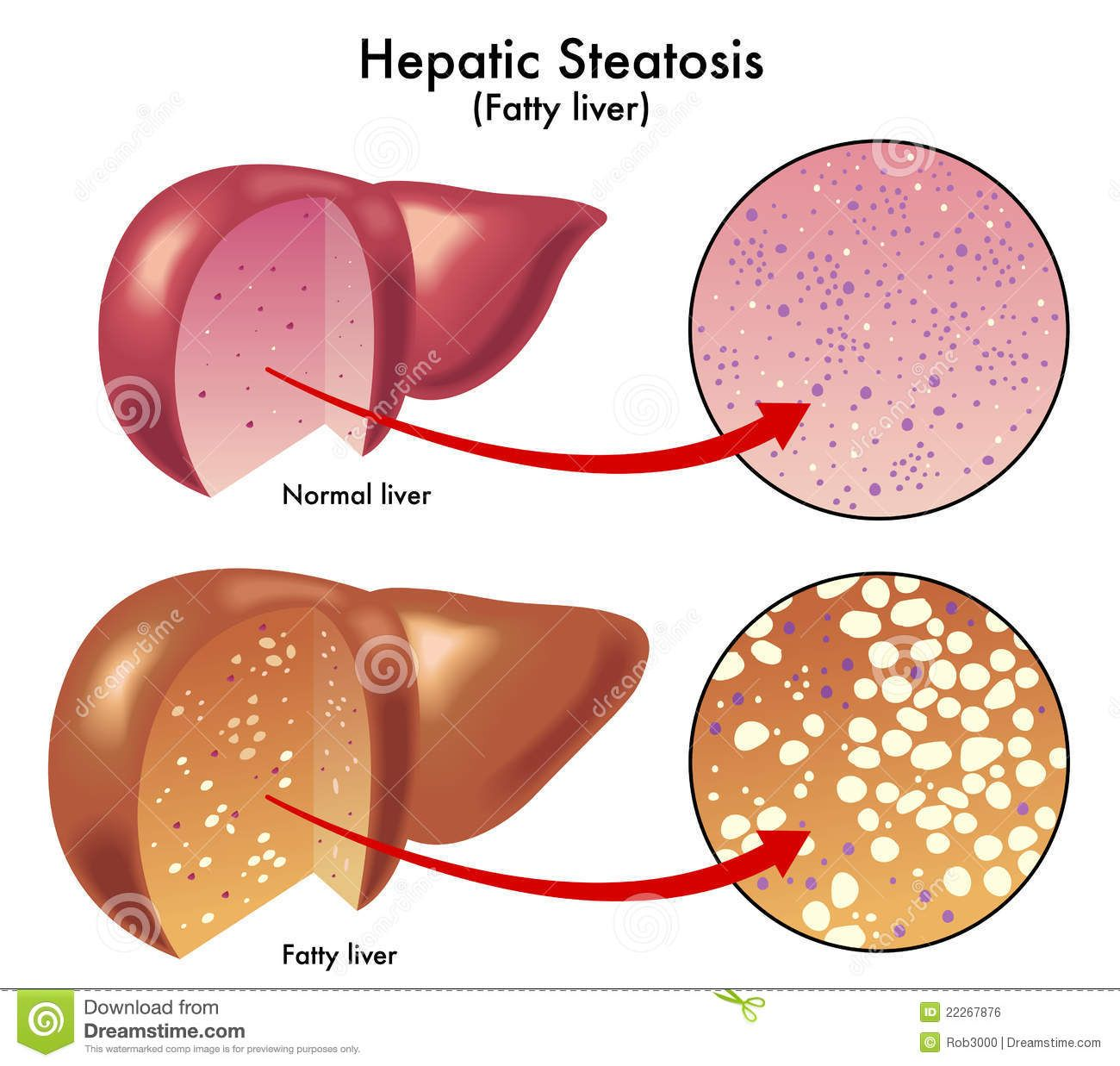 fatty liver disease Overview non-alcoholic fatty liver disease (nafld) is a very common disorder and refers to a group of conditions where there is accumulation of excess fat in the.