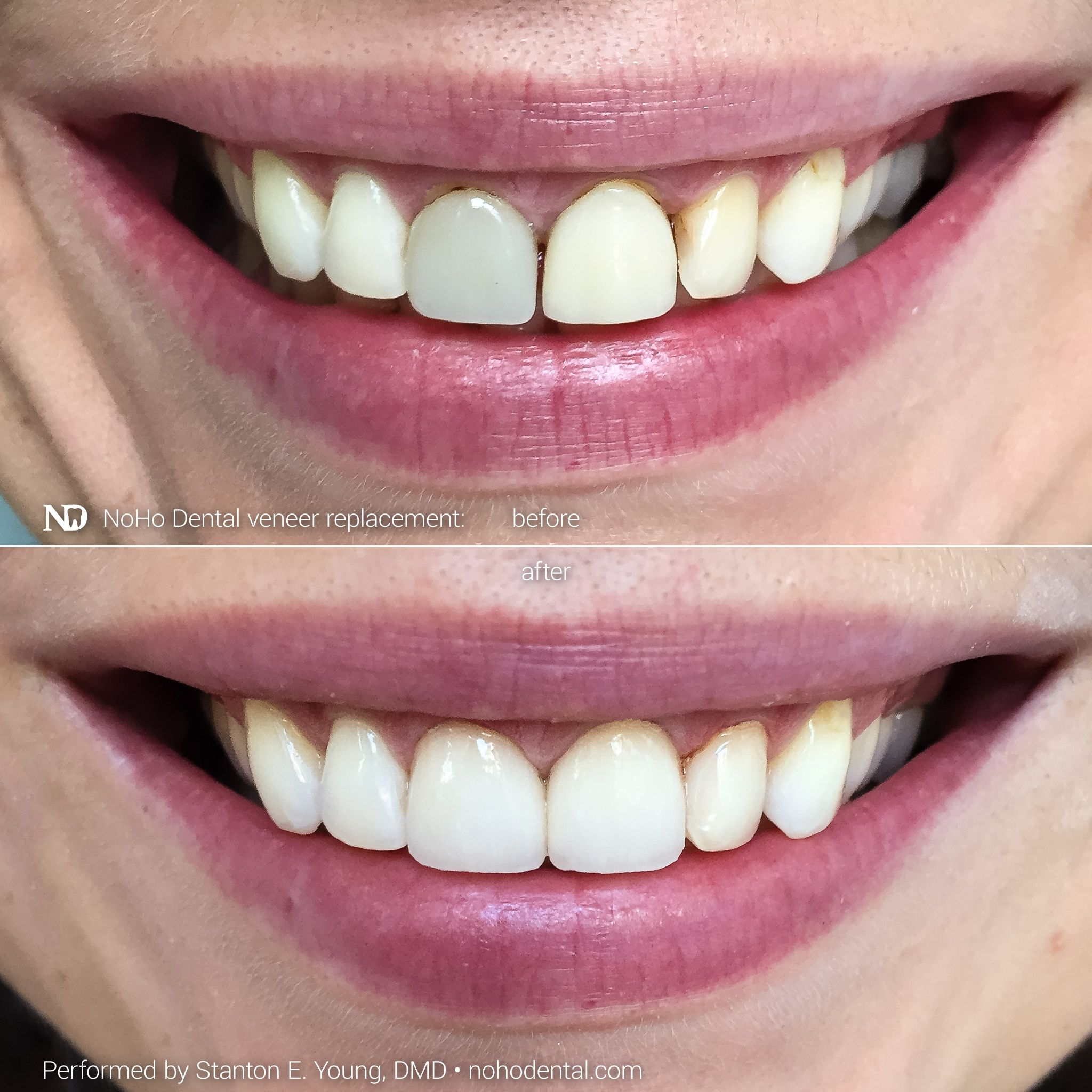 This Patients Dental Veneers Were Poorly Shaped And Color Matched Had An Imprecise Margin