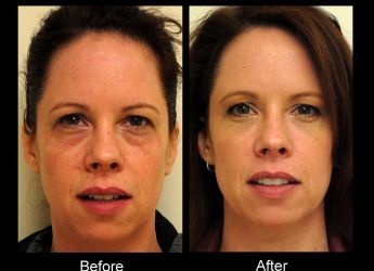One syringe of Juvederm Ultra XC injected into tear troughs