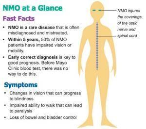 Devic disease,, Neuromyelitis optica,,   Optic neuritis ...