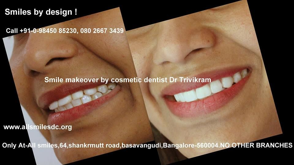 What are dental veneers how do they help in enhancing
