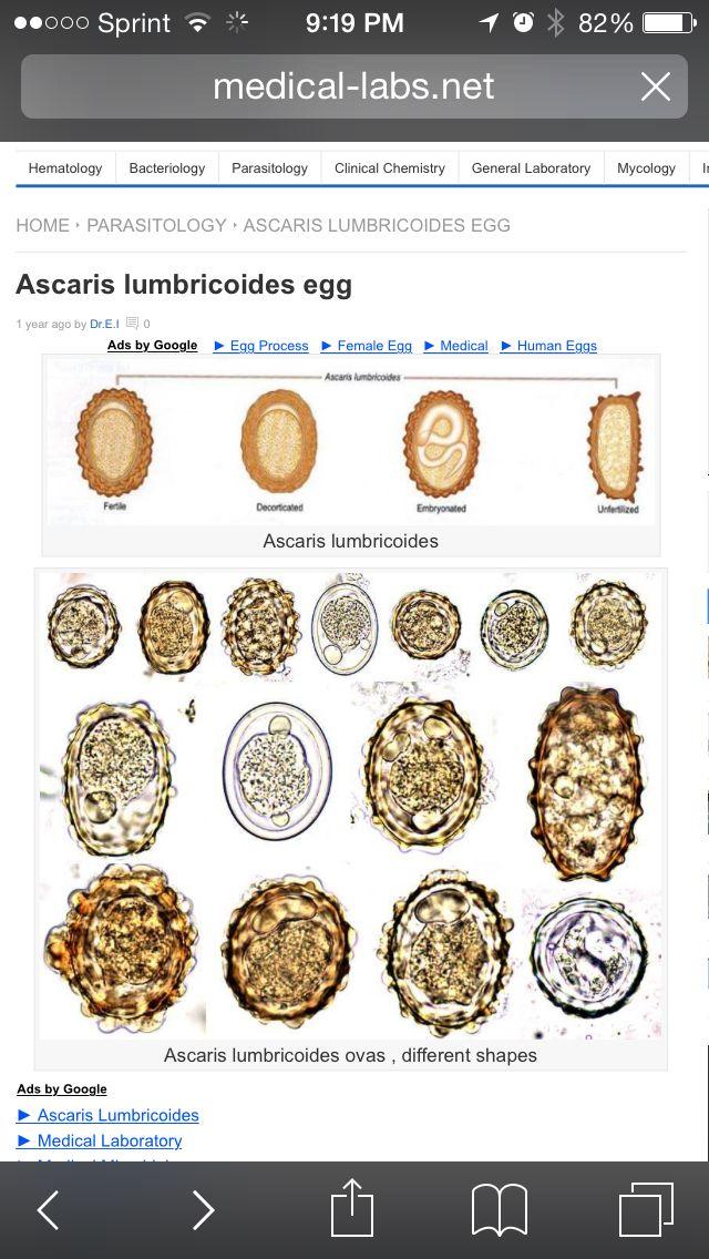 parazit helmint)