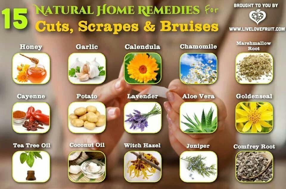 Home Remedies Natural home remedies, Home remedies, Remedies
