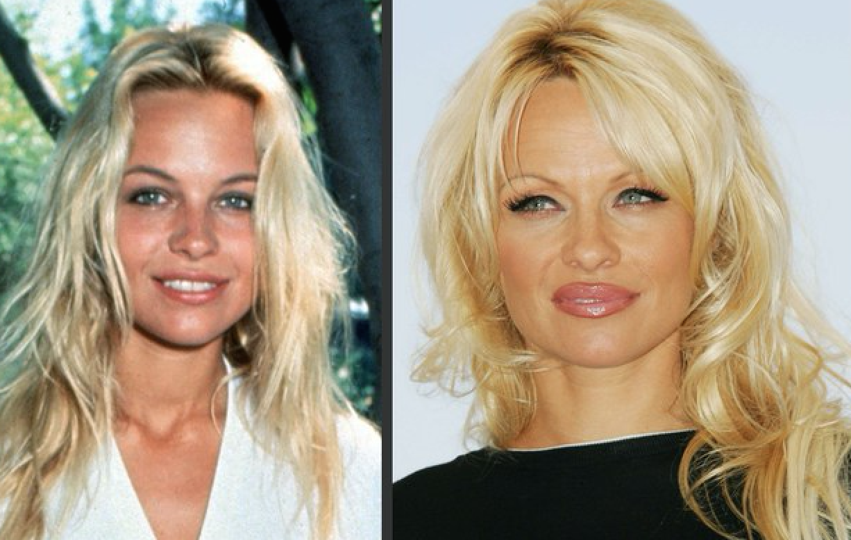pamela anderson avant apr s de la chirurgie esth tique avant apres chirurgie pinterest. Black Bedroom Furniture Sets. Home Design Ideas