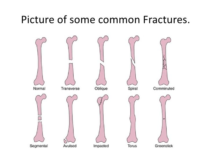 Picture of some common Fractures  | GOALS ❤ | Family nurse