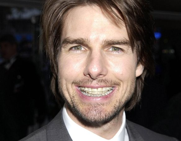 tom cruise teeth | Tom cruise teeth, Tom cruise, Celebrities with braces