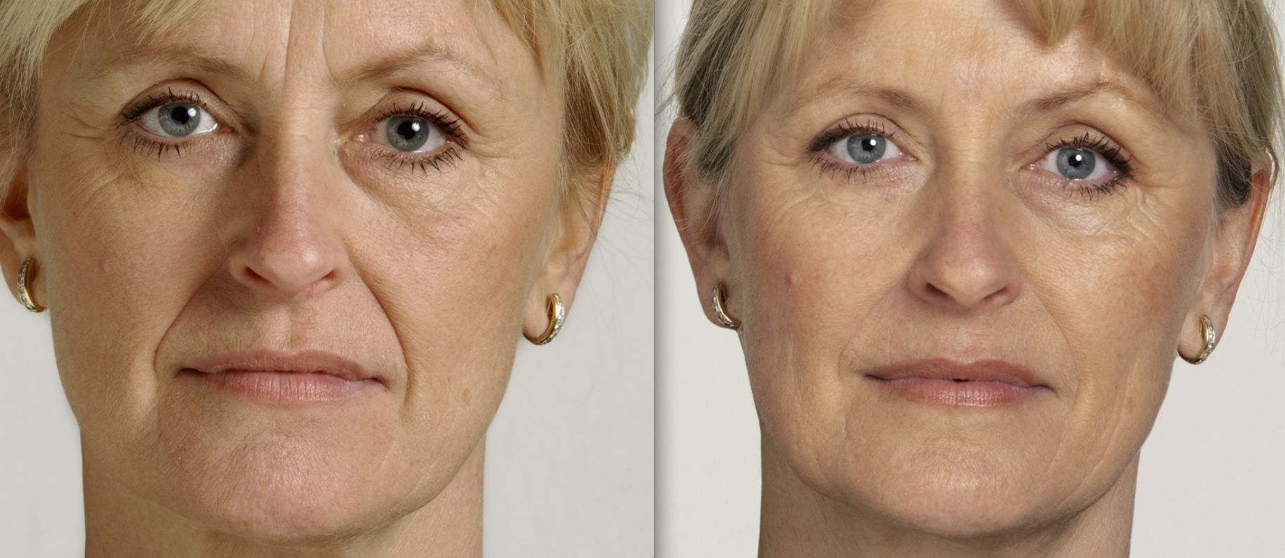 How You Can Acquire A NonInvasive Facelift Using Effortless Face