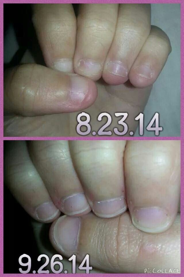Nail biter? Try Jamberry Nail Wraps! This happy camper did :) #Fall ...