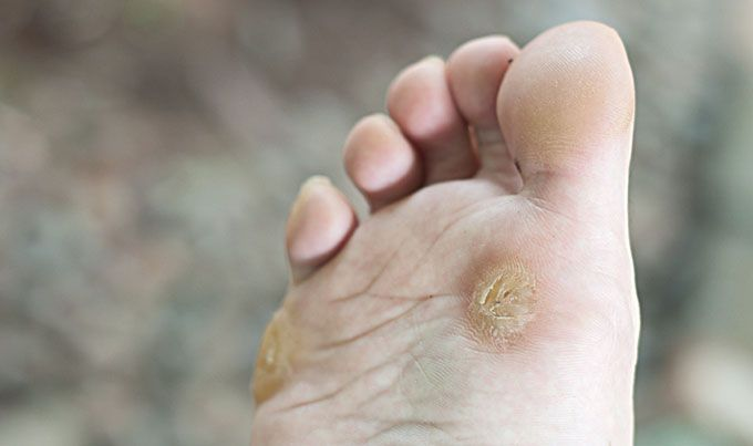Understanding Foot Corn Beauty Solutions Get Rid Of Corns Warts Remedy Warts