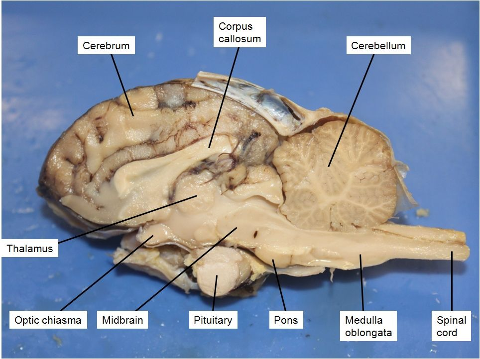 Picture | Medical | Nervous | Pinterest | Anatomy and Brain