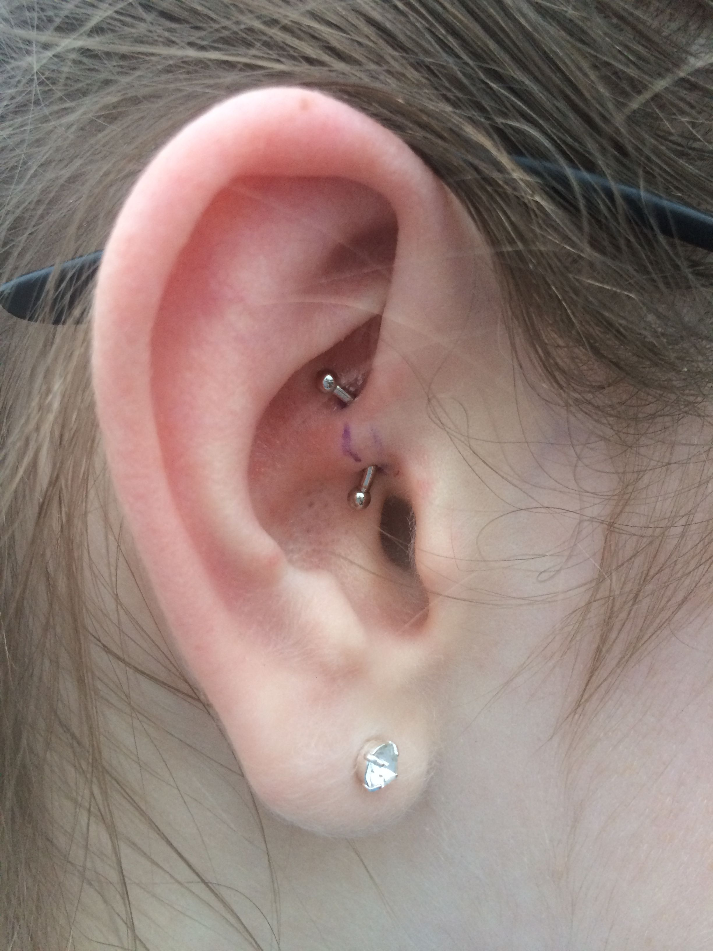 Daith Piercing I Just Got Today It Hurt But Not As Much As I