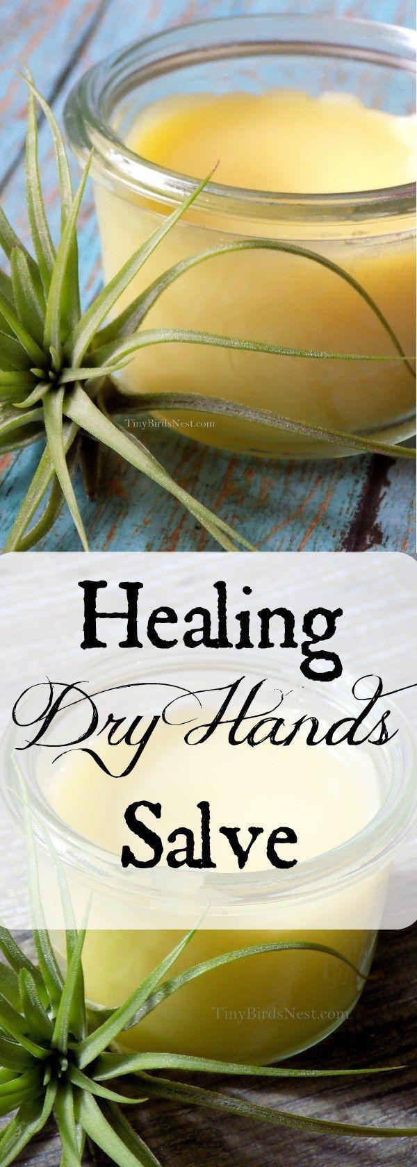 Healing Dry Skin Remedy Salve  Soaps u Salves  Pinterest  Dry