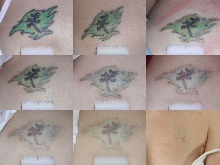 Photo of Pin The Best Natural Tattoo Removal Solution Gehen Sie zu Httptattoo auf … #removetatt …,…