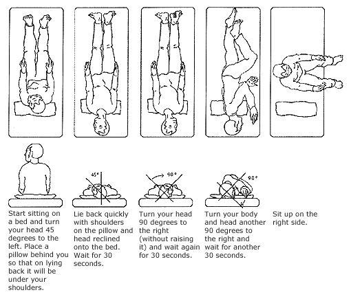 epley maneuver for left ear step by step diagram