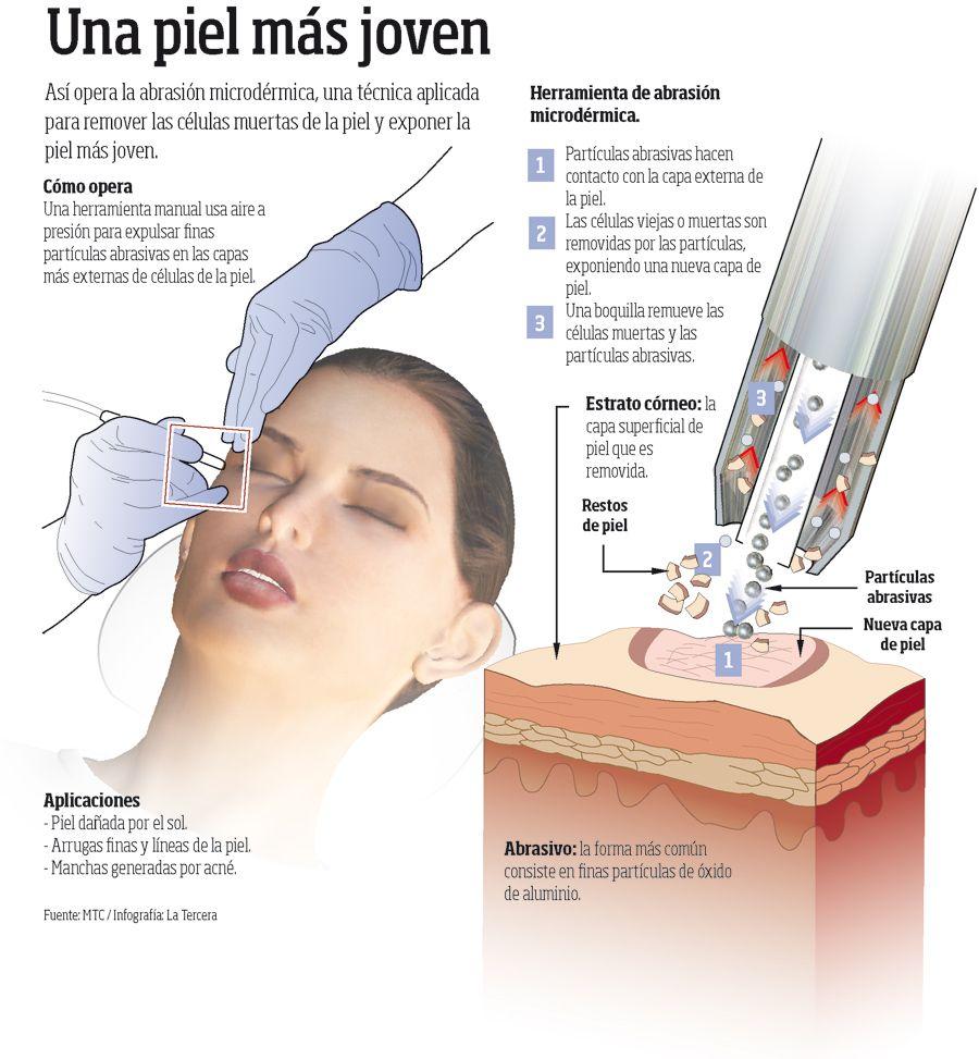 Resultado de imagen de peeling infografçia
