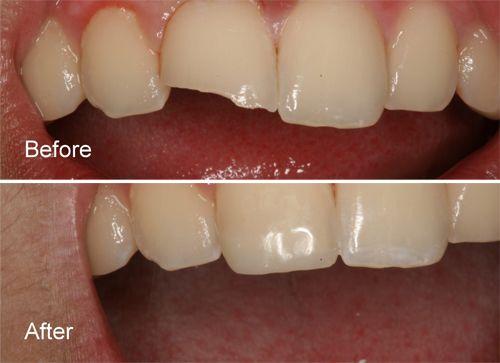 Composite Fillings In New Delhi White Tooth Coloured Fillings Dental Composite Resin Teeth Fillin Tooth Filling Chipped Tooth Repair Tooth Colored Fillings