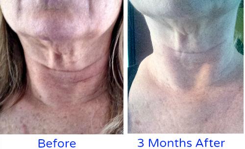 Crepey Skin Remedies My Home Remedies Skin Remedies Crepey Skin Skin Treatments