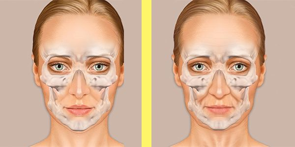 Changes in facial skin