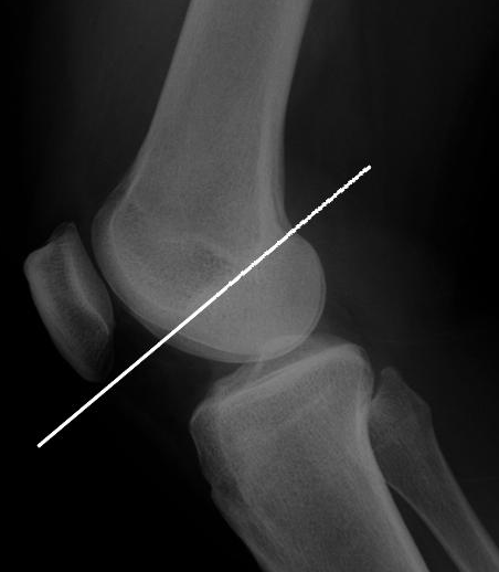 Blumensaat Line And Its Significance Bone And Spine Line Spines Knee Joint