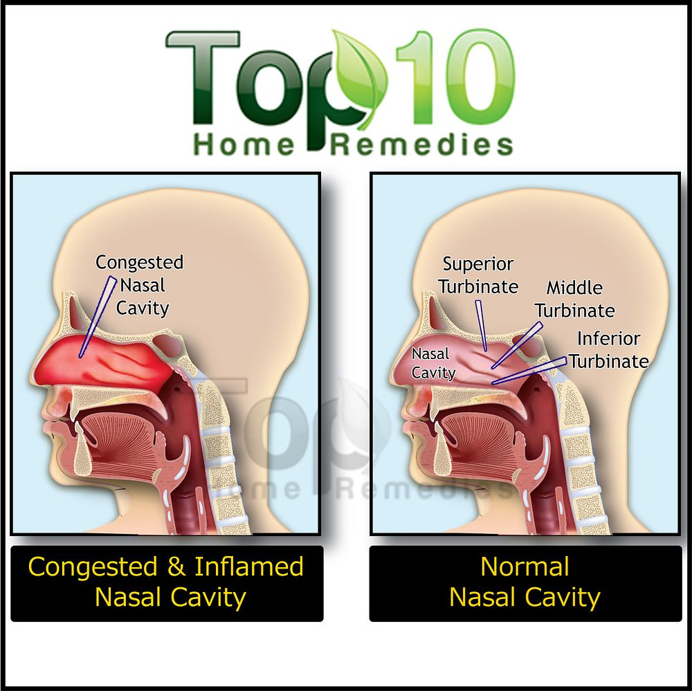 Home Remedies For Nasal Congestion Illustration Opt Garlic