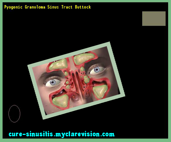 Natural Cure For Sinus Tachycardia