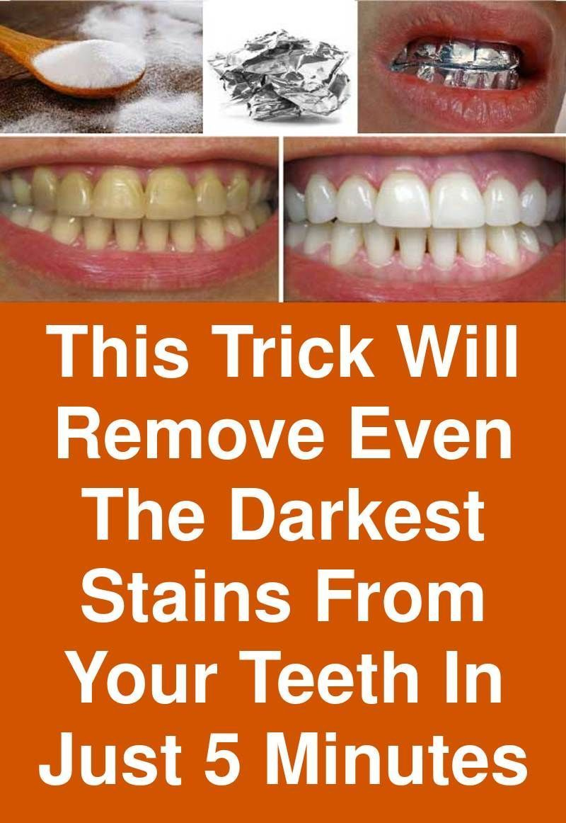 Skin Care Tips That Everyone Should Know Dark stains