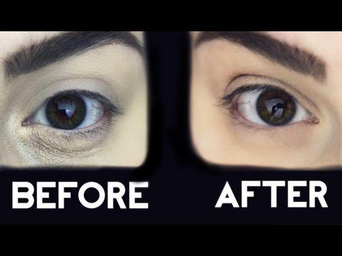 Perfect Dry Skin Around Eyes Makeup And Description Dry Skin Around Eyes Dry Under Eyes Under Eye Makeup