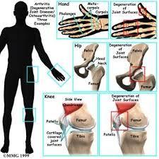 Sakit tulang bokong kanan
