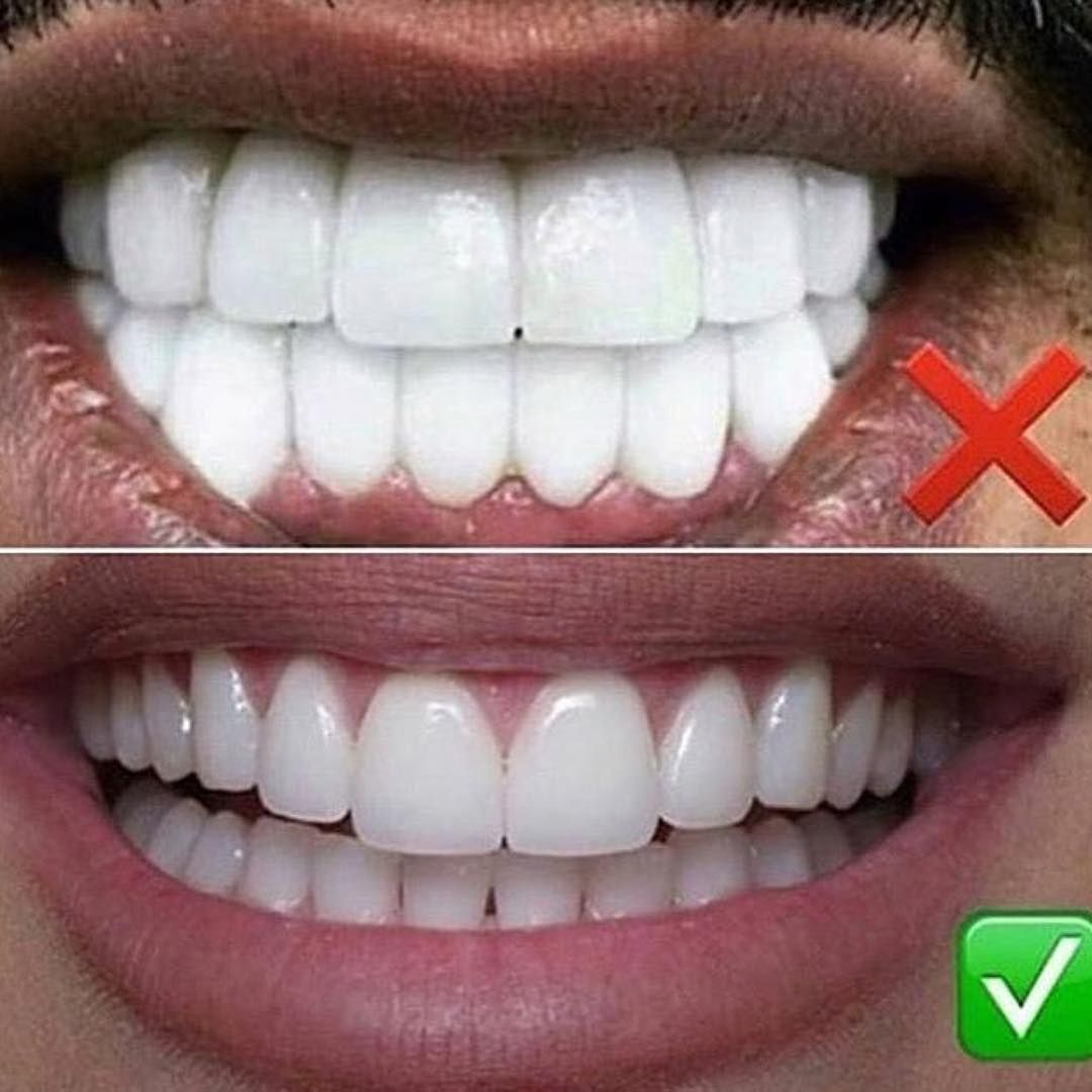 Pin By Sina Edalat On Dentist