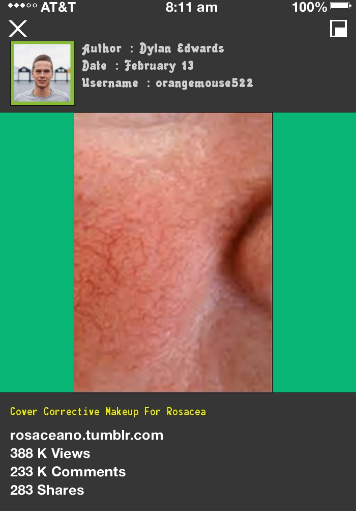 Cover Corrective Makeup For Rosacea 014448 Rosacea Free
