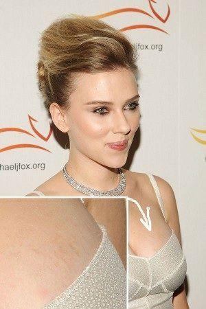 Celebrity Stretch Marks We Think You Ll Agree That Scarlett Johansson Is Looking Rad Scarlett Johansson Hairstyle Scarlett Johansson Scarlett Johanson