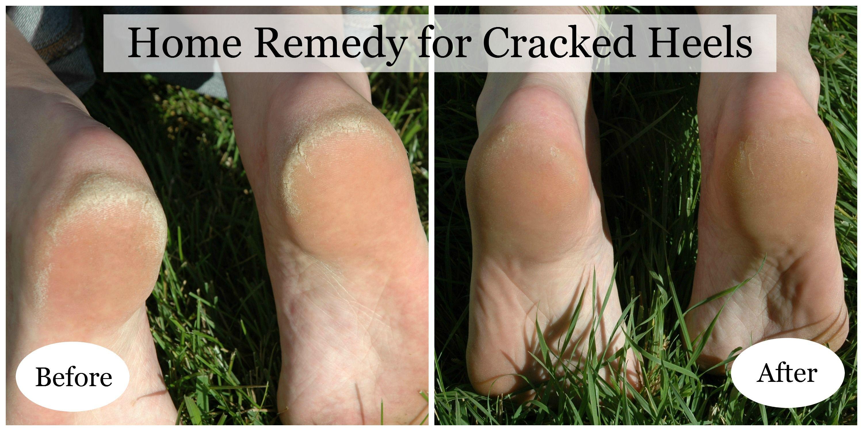 Cracks on the heel: how to treat an ailment
