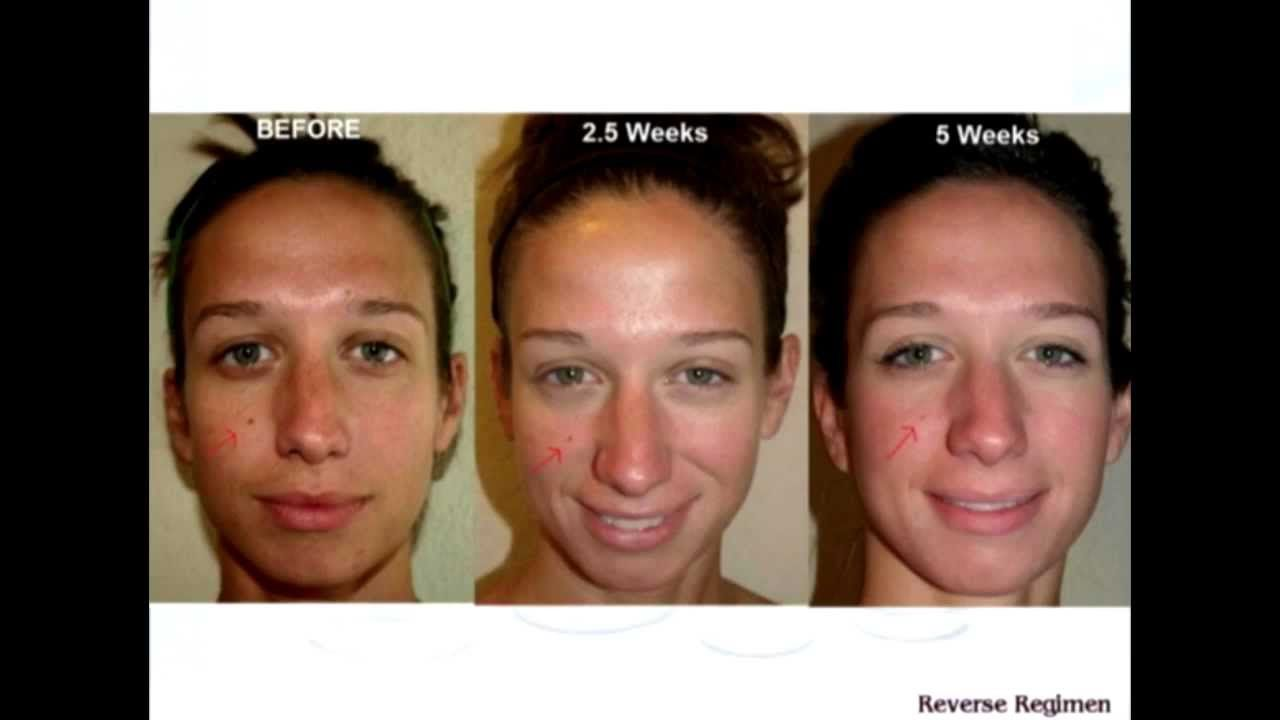 Rodan+Fields Reverse Regimen Before and After Picture ...